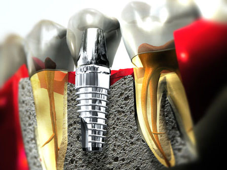 Early loading of dental implant